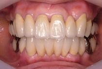 歯周補綴⑤治療後正面観-thumb-210x142-63