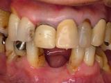 歯周補綴初診時正面観②-thumb-160x120-86
