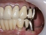 歯周補綴⑧治療後左側方面観-thumb-160x121-96