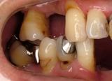 歯周補綴②初診時右側方面観-thumb-200x146-83-thumb-160x116-84