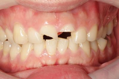 歯冠破折①初診時一部破折あり-thumb-500x333-36-thumb-400x266-37