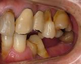 歯周補綴③初診時左側方面観-thumb-160x126-88