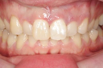 歯冠破折③初診時レジン充填治療後-thumb-400x266-41