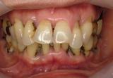 歯周補綴①初診時正面観-thumb-160x111-98-thumb-210x145-132