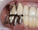歯周補綴⑦治療後右側方面観-thumb-160x126-90