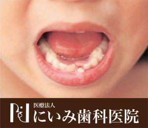 三重県四日市_にいみ歯科医院_乳歯_幼児