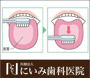 三重県四日市_にいみ歯科医院_舌苔除去