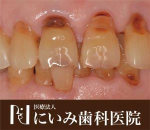 三重県四日市_にいみ歯科医院_口臭5