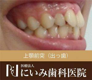 三重県四日市_にいみ歯科医院_出っ歯