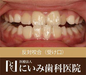 三重県四日市_にいみ歯科医院_受け口