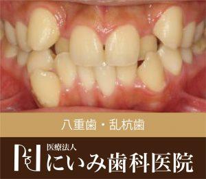 三重県四日市_にいみ歯科医院_八重歯_乱杭歯