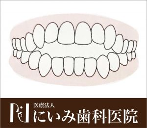 三重県四日市_にいみ歯科医院_噛み合わせ2