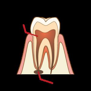 汚染された歯髄 歯の痛み
