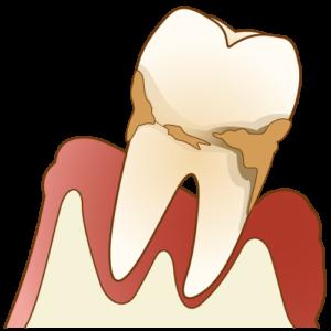 歯周炎 歯肉炎 歯の痛み