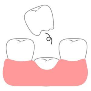 抜けそうな歯 グラグラ 乳歯