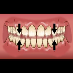 タッピング 歯ぎしり