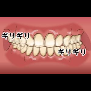 グラインディング 歯ぎしり