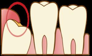 親知らずの周囲の歯茎の腫れ(智歯周囲炎) 歯の痛み