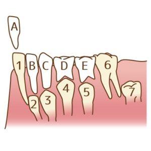 乳歯 子供の歯